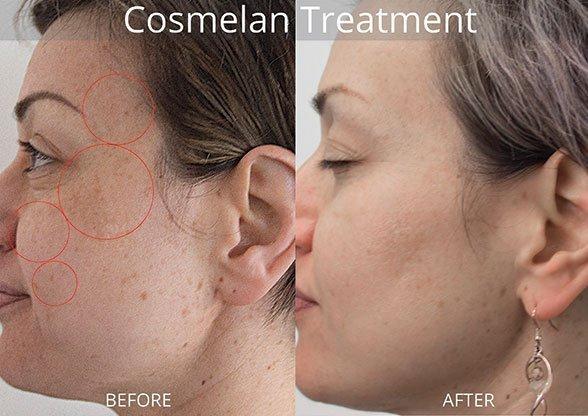 Cosmelan Results image
