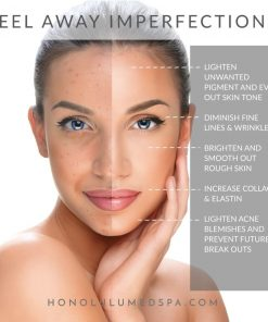 Online chemical peel course